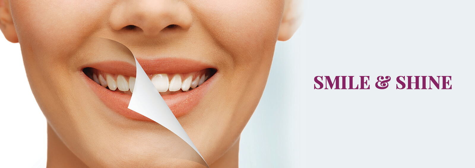 Teeth Whitening Gurgaon Dantkriti
