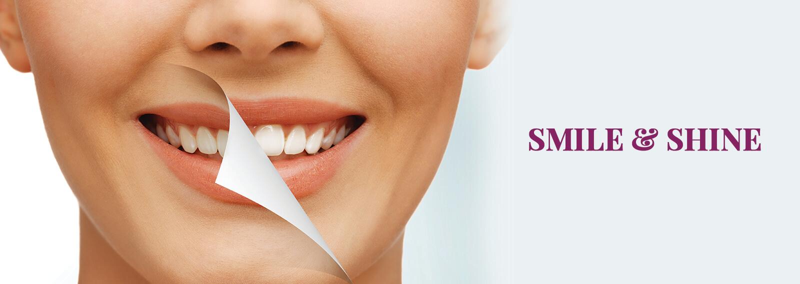 Teeth Whitening Gurgaon Dantkriti